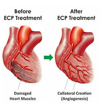 Tyagi-ECP-treatment