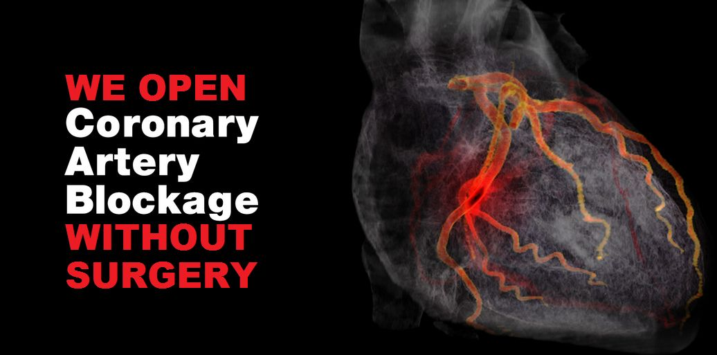Tyagi-ECP-artery-blockage
